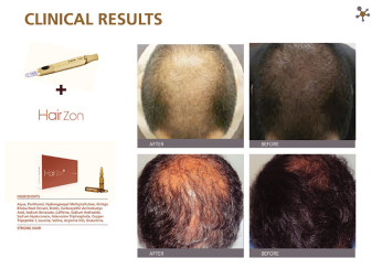Clinical-Results-HairZon