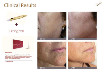 Clinical-results-LiftingZon